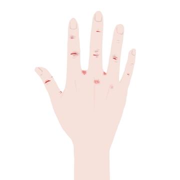 手の指のぱっくり割れ